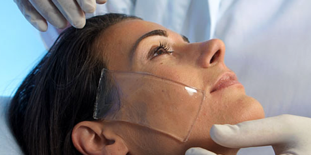 Swiss Therapy Laser Resurfacing